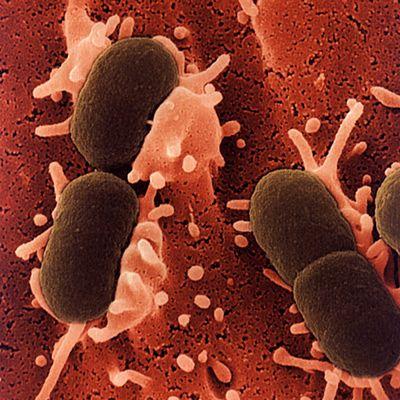 escherichia-coli-v-sperme