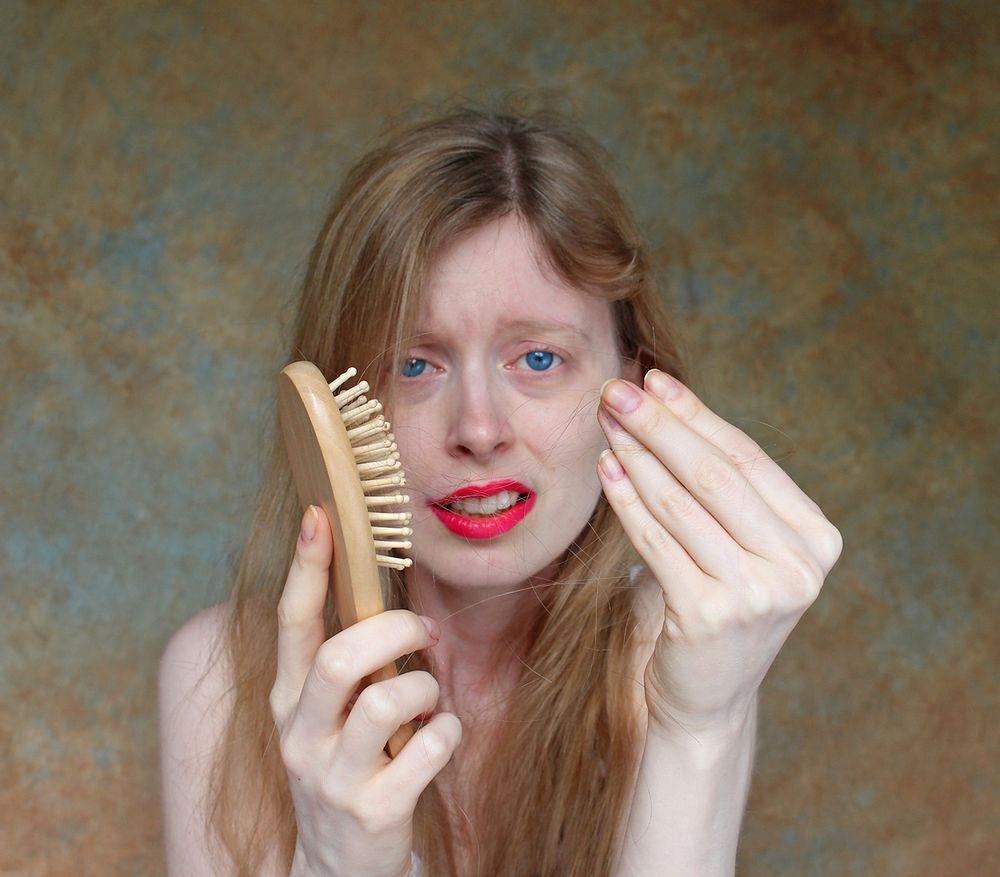 jak powstrzymać wypadanie włosów-domowe sposoby