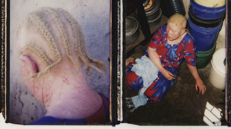 Kiedy w Tanzanii zaczęto zabijać osoby z albinizmem, Siwasahahu bała się o siebie i swoją rodzinę. Dziś, gdy liczba ataków spadła, musi mierzyć się z innymi ograniczeniami, które stoją przed osobami z albinizmem