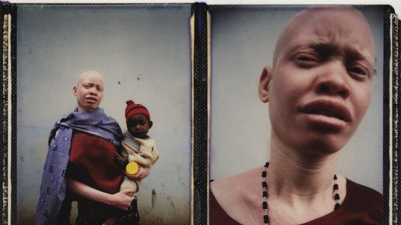 Masalu Masanja ze swoją córką, Sofią. Masalu jest ofiarą zbiorowego gwałtu, który wynikał z przekonania, że seks z albinoską może uleczyć z HIV i AIDS. Sofia to dziecko jednego z jej oprawców