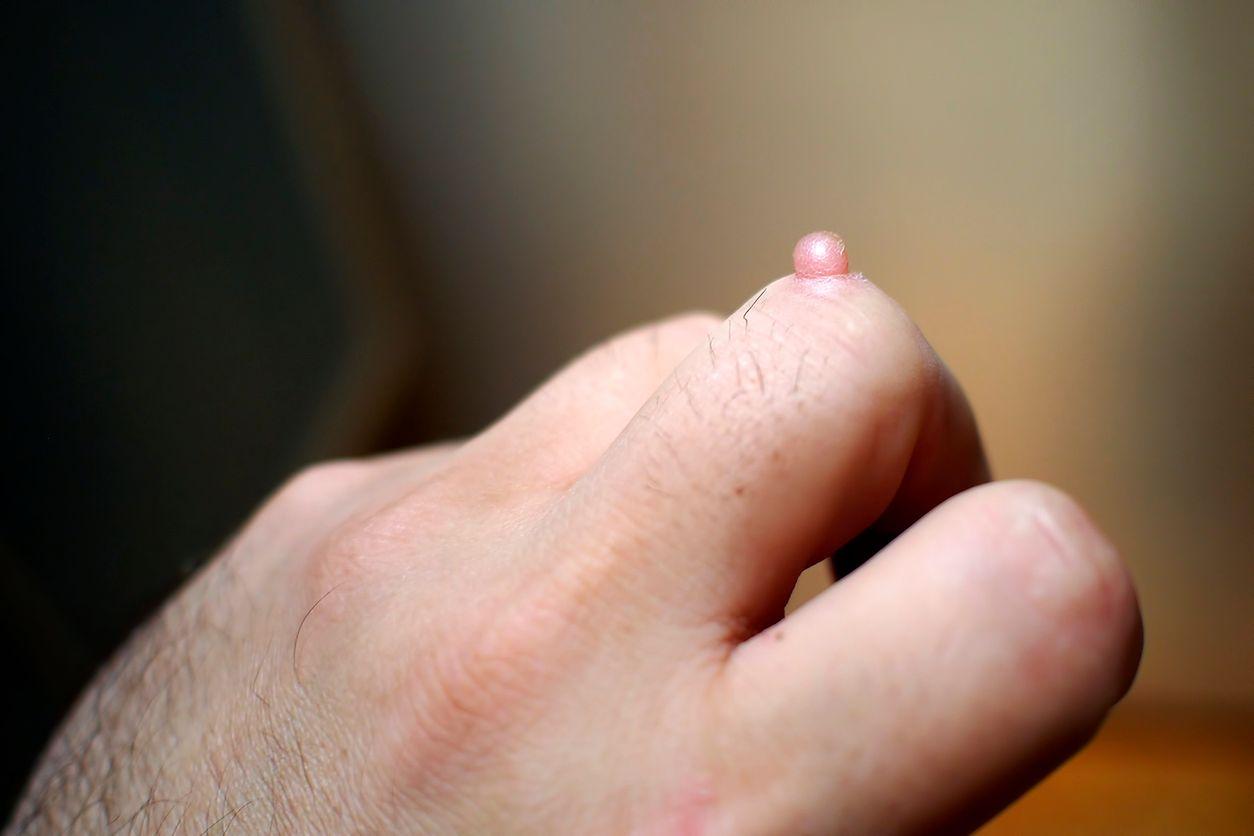dlaczego boleśnie wejdź do penisa
