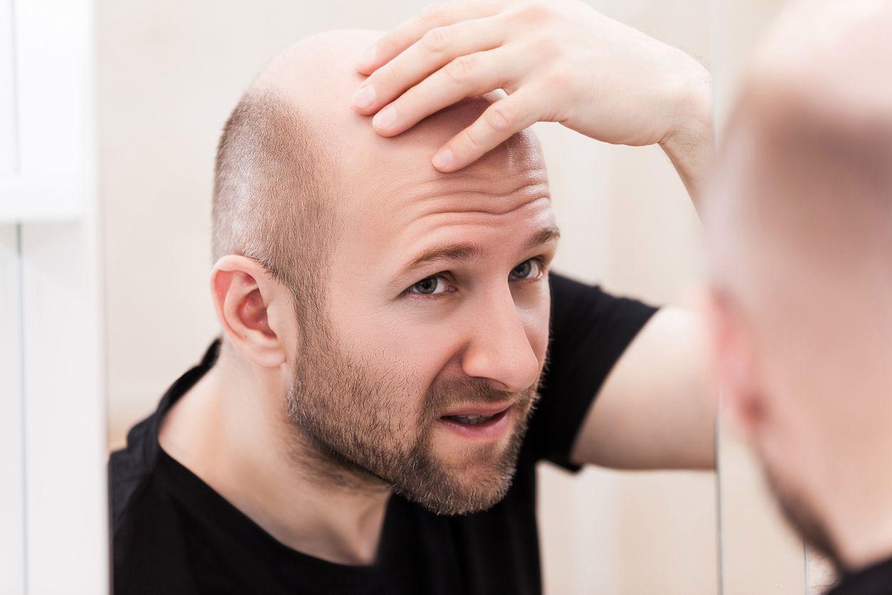 wypadanie włosów u dziecka po antybiotyku