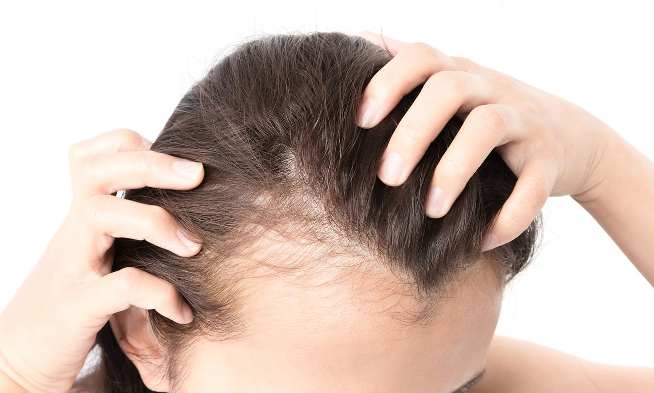 badanie poziomu hormonów a wypadanie włosów