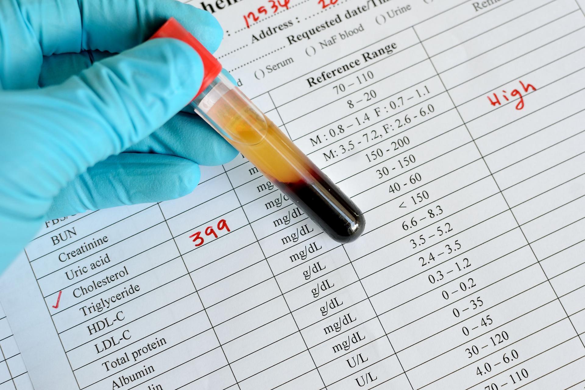 只有膽固醇過高才會動脈硬化?醫師公開10個意想不到的傷「心」元凶