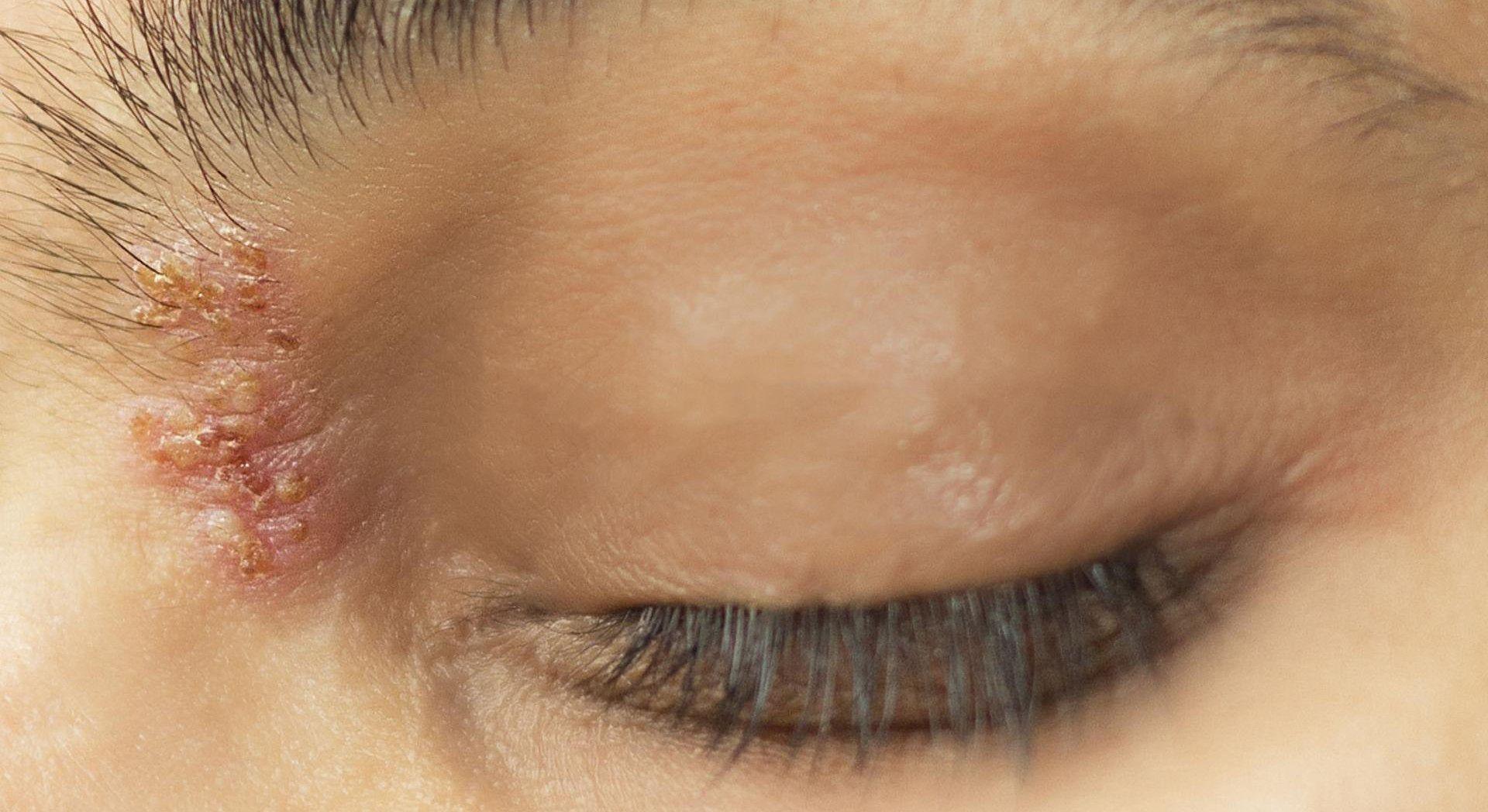 Półpasiec oczny - objawy, leczenie i powikłania | WP abcZdrowie