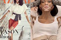Najsłynniejsza modelka z bielactwem udaje modną kociarę