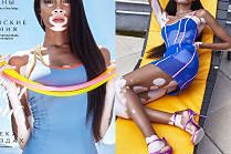Modelka z bielactwem odsłania ciało w letniej sesji