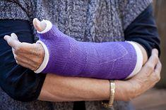 Leczenie złamania Collesa polega najczęściej na unieruchomieniu dłoni