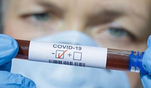 Koronawirus – jak długo jeszcze musimy wytrzymać?