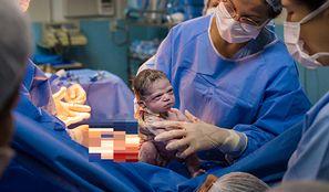 Zdjęcie zrobiono tuż po porodzie. Jest hitem internetu