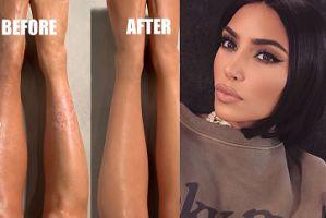 """Przełom na Instagramie Kim Kardashian: Pokazała swoje niedoskonałości! """"To był mój sekret przez ponad 10 lat"""""""