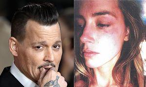 """Johnny Depp oskarża Amber Heard: """"Namalowała sobie siniaki!"""""""