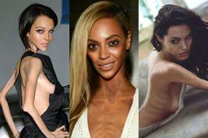 Gwiazdy jako anorektyczki! Dobry sposób na walkę z chorobą?