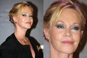 Co się stało z twarzą Melanie Griffith? (ZDJĘCIA)