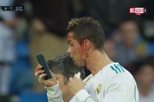 ZALANY KRWIĄ Ronaldo sprawdza swój wygląd na telefonie