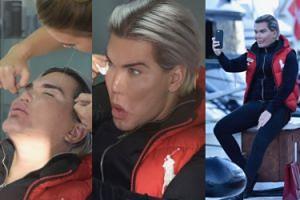 """""""Żywy Ken"""" zaprosił fotografów na zabieg depilacji... (ZDJĘCIA)"""