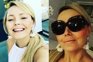 Owocne wakacje Agnieszki Jastrzębskiej: W Grecji puchną jej usta? (FOTO)