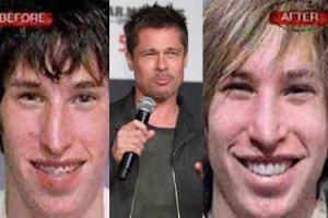 Amerykańscy bliźniacy wydali ponad 70 TYSIĘCY, żeby upodobnić się do... Brada Pitta! Jak wyszło?