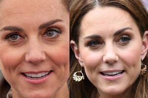 Kate Middleton wstrzykuje sobie botoks? Pałac Kensington skomentował doniesienia kliniki