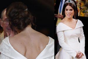 """Księżniczka Eugenia pokazała na ślubie bliznę na plecach. """"To jest naprawdę ważne"""""""