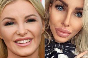 Coraz bardziej obfite usta Roxi Gąski pozdrawiają z Instagrama. KUSZĄCE? (FOTO)