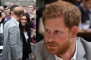 Książę Harry też łysieje. Planuje PRZESZCZEP WŁOSÓW?