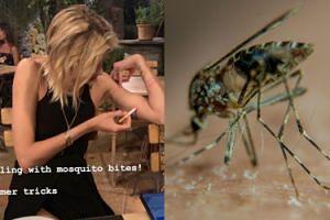 Medycyna alternatywna według Anji Rubik: leczy ugryzienie komara papierosem. Pomysłowa? (FOTO)
