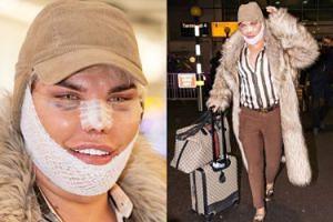 """""""Żywy Ken"""" z kolejnym nowym nosem straszy na lotnisku (FOTO)"""