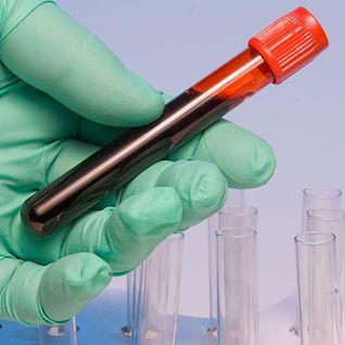 Forum Interpretacja badania krwi