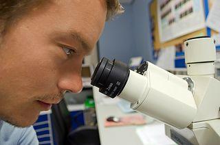 Zespół Cushinga Objawy Diagnostyka Leczenie Wp Abczdrowie