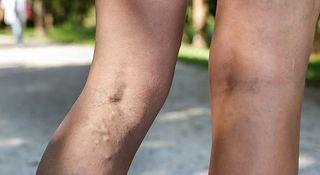 Zakrzepowe Zapalenie Zyl Glebokich Zakrzepica Przyczyny Objawy