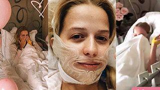 """Mercedes pozuje w szpitalnym łóżku i z szyną na twarzy: """"Myślałam, że będzie gorzej"""" (ZDJĘCIA)"""