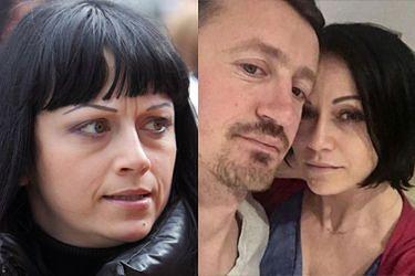 """Izabela Małysz wyznaje: """"NIE MAM BRWI, włosy nie rosną"""""""