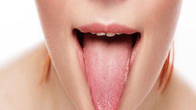 Biała narośl pod językiem