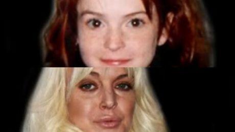 Zobacz ewolucję twarzy Lindsay Lohan