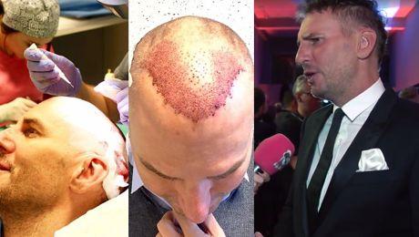 Gojdź chwali się przeszczepem włosów Mam kolejkę pacjentów którzy chcą wyglądać jak ja