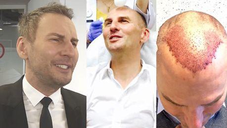 Gojdź chwali się efektami przeszczepu włosów Rewelacyjny efekt Jest bujna czupryna