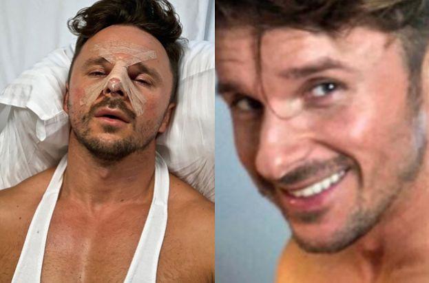 """Qczaj przeszedł operację nosa!: """"Boli, swędzi i chyba najgorsze: MUSZĘ SPAĆ NA PLECACH"""""""