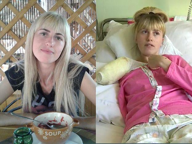"""29-letnia Ukrainka STRACIŁA RĘKĘ w koszmarnym wypadku podczas pracy: """"Ważniejszy był magiel, niż moje życie"""""""
