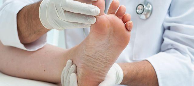 Sposoby na odciski i pęcherze na stopach | WP abcZdrowie