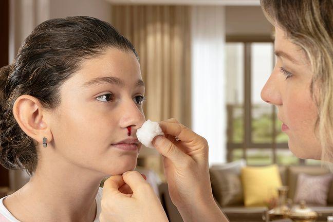 Krwawienie z nosa dlaczego nos krwawi? Przyczyny