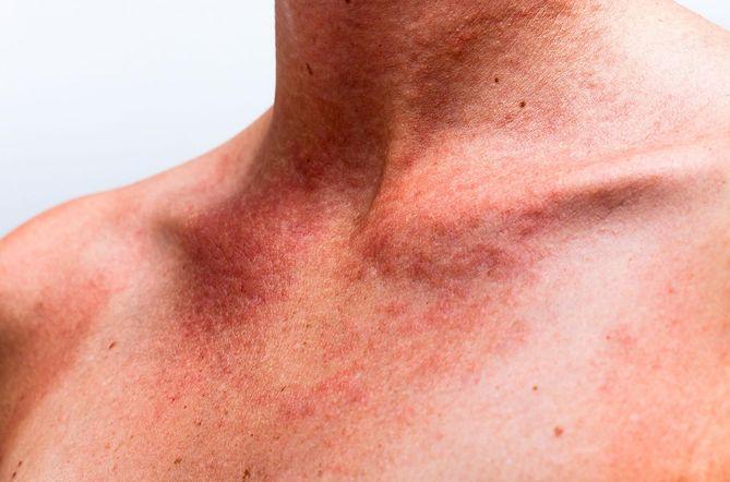 faada3845c63d2 Plamy na ciele mogą być powodowane mechanicznie lub być oznaką choroby.