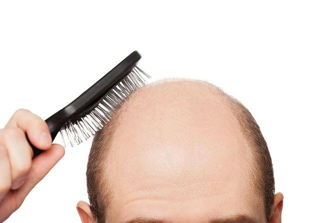 wypadanie włosów depresja