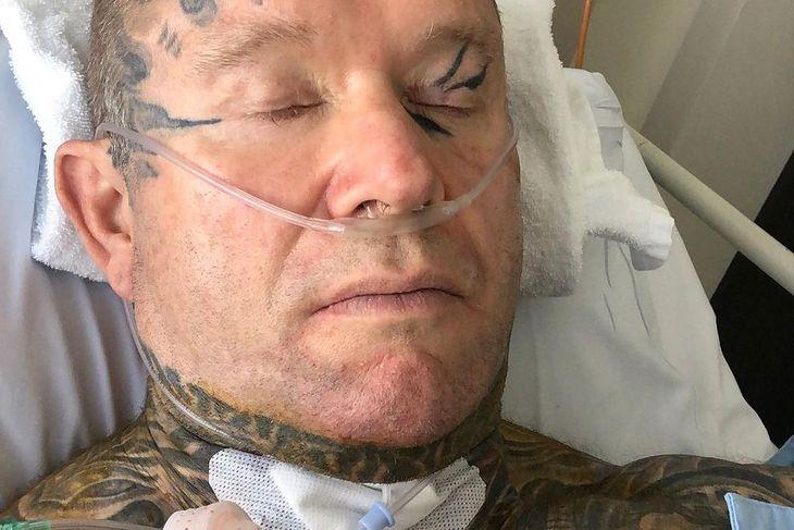 Lee Priest po operacji