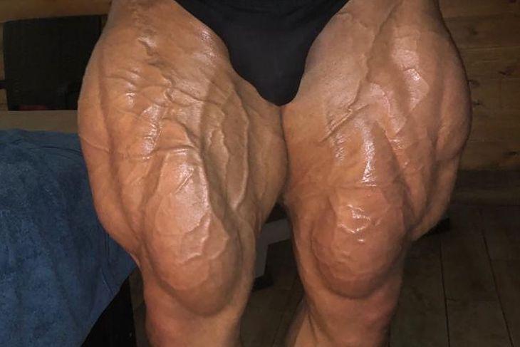 Big Ramy - muskulatura nóg