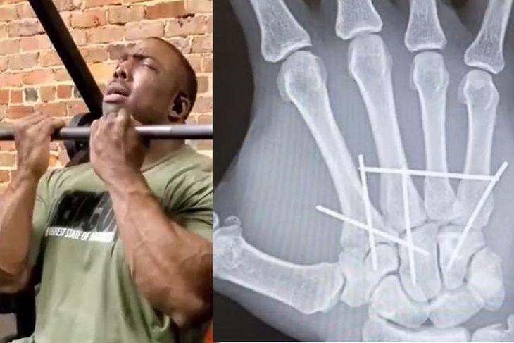 Cecrid McMillan i jego operowana dłoń