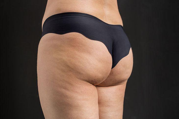 Cellulit powoduje niezdrowe odżywianie