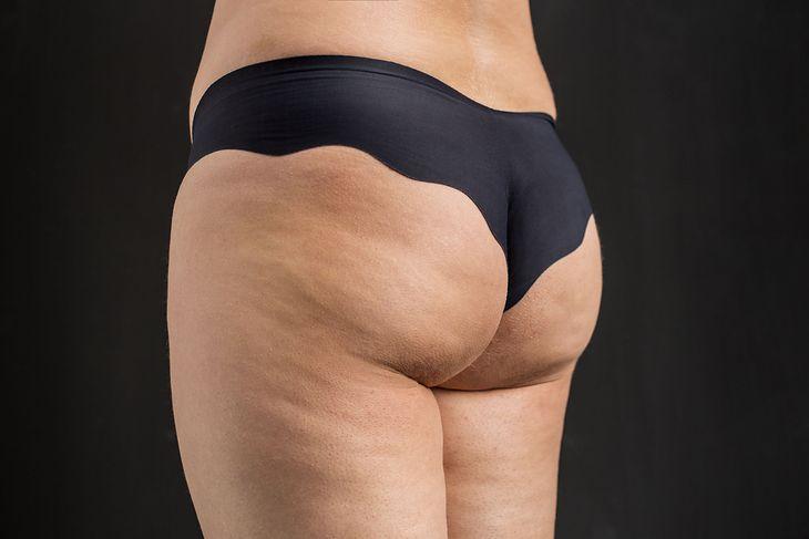 Grubym udom często towarzyszy brzydki cellulit