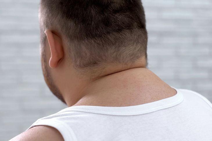 Mężczyzna z tzw. garbem tłuszczowym/szyjnym