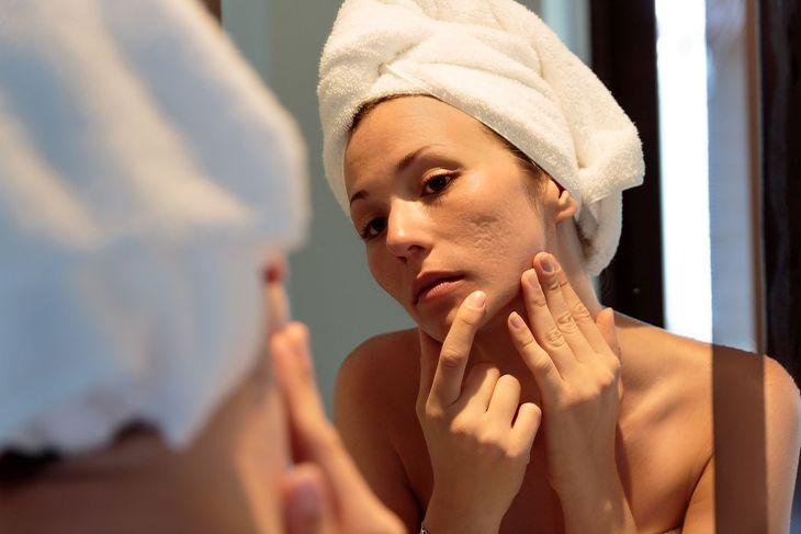 Na zdjęciu: kobieta z trądzikiem
